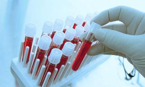 Анализ ИФА на сифилис