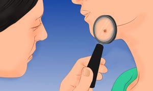 Как проявляется сифилис у женщин