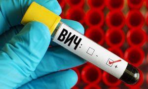 Есть ли разница между сифилисом и ВИЧ-инфекцией
