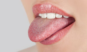 Сифилис на языке — первые признаки, лечение