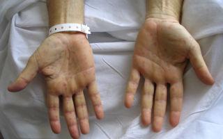 Сифилис на руках — фото