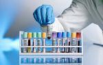 Как называется анализ крови на сифилис и где его сдать