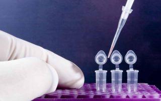 Ложноотрицательный анализ на сифилис