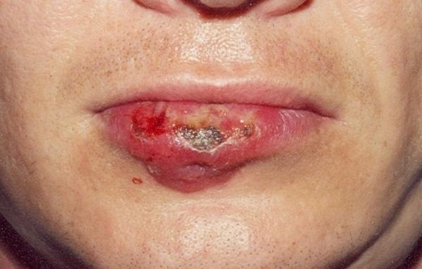 язвенный шанкр на губе при сифилисе