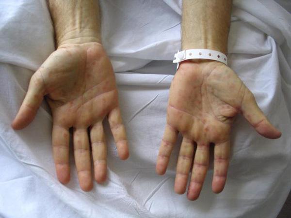 Фото как выглядит сифилис
