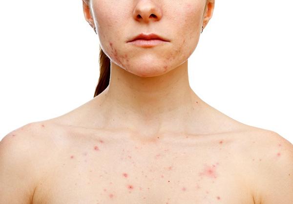 Пятна при сифилисе (красные, белые) - Какие пятна появляются на теле при сифилисе (фото)