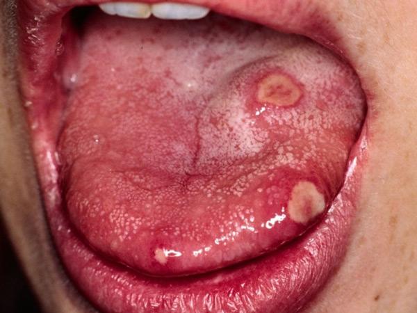 Фото сифилиса на языке