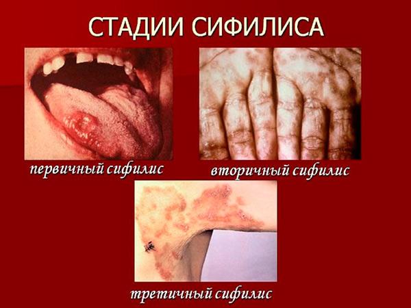 Стадии сифилиса
