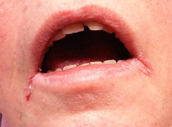 Фото шанкра в уголках губ