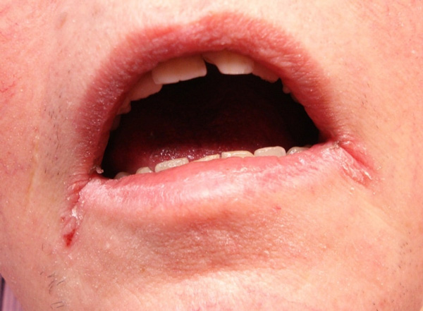 Уголки губ