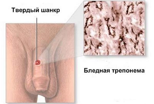 Сифилис на коже: фото, симптомы, диагностика и методы лечения