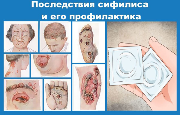 Последствия сифилиса