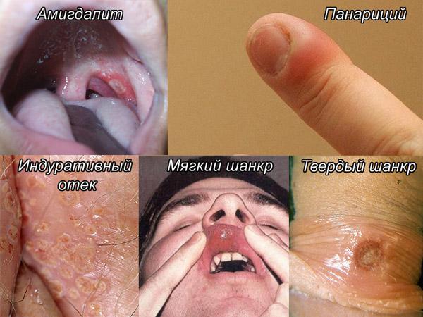 Ваш дерматолог