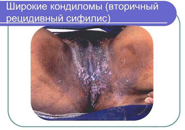Сифилитические кондиломы