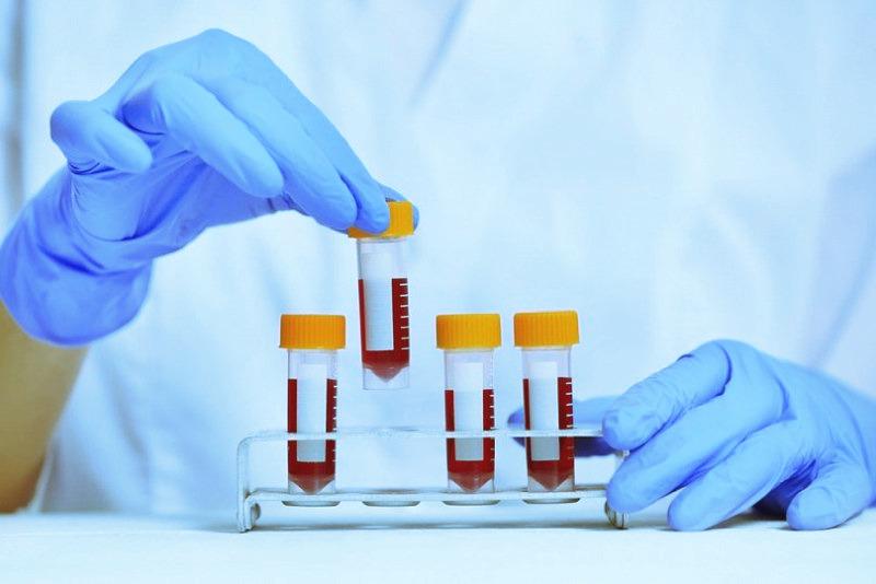 Сбор крови на сифилис. 2