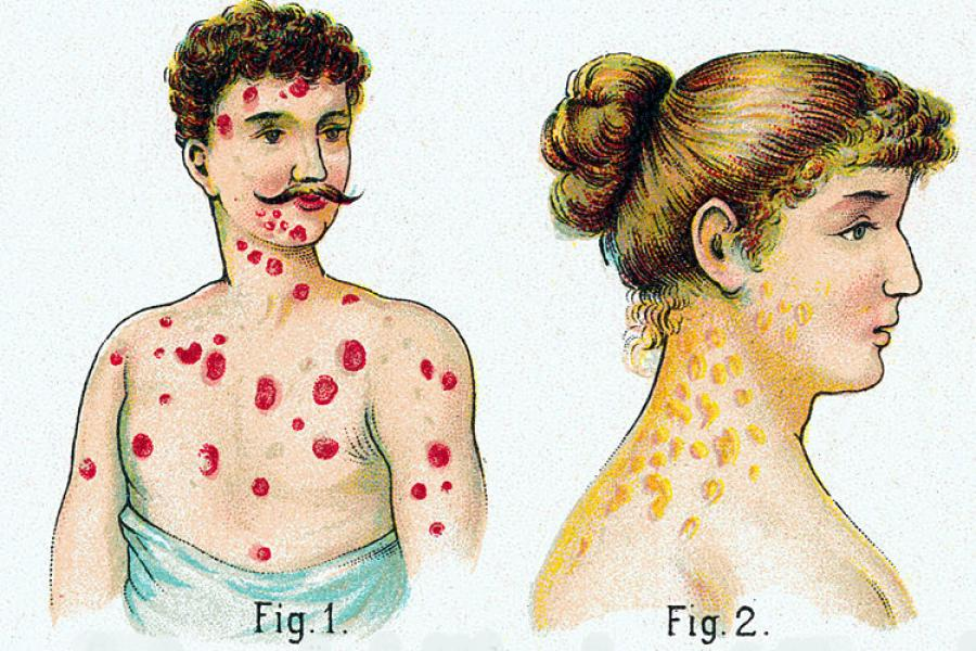 Как проявляются венерологические заболевания у женщин симптомы