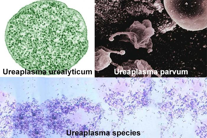 Ureaplasma parvum лечение у женщин препараты
